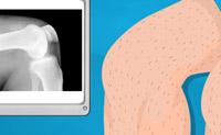Knee Surgery