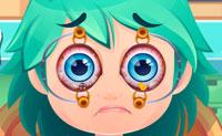 Operação dos olhos